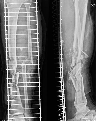 open-comminuted-tibia-fibula-fracture