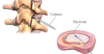 Intradiscal Electrothermal Therapy