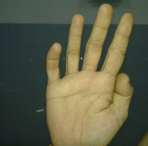 Ulnar Claw Hand