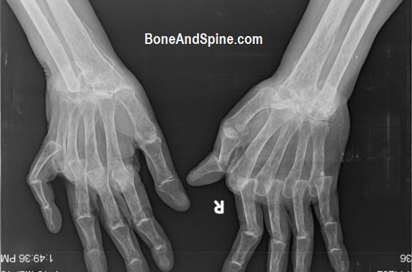 Bilateral Deformed Hands In Rheumatoid Arthritis