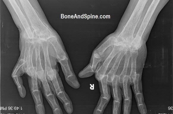 bilateral wrist xrays