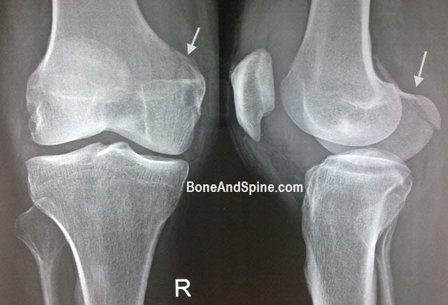 Fracture Medial Condyle of Femur