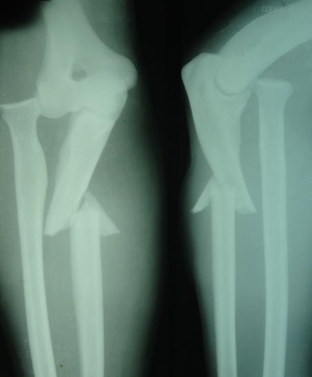 Type I Monteggia Fracture Dislocation