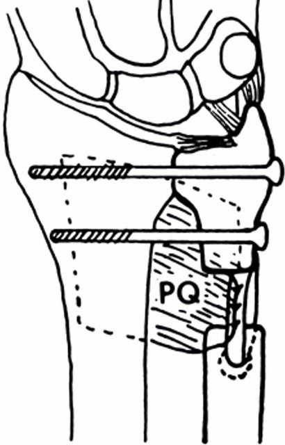 SAUVE-KAPANDJI procedure on distal ulna