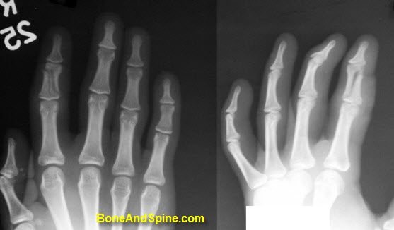 Fracture of Middle Phalanx