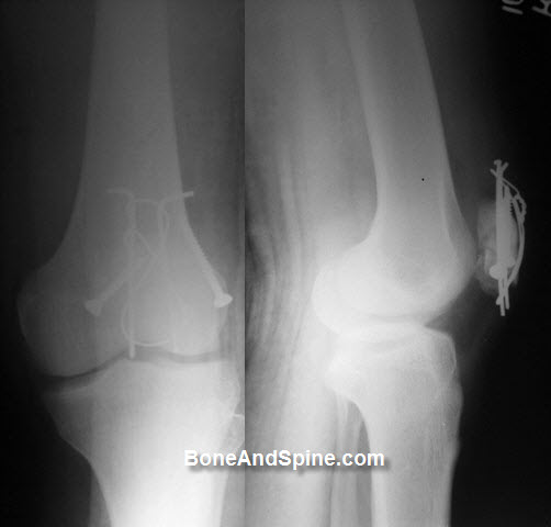 TBW In fracture patella