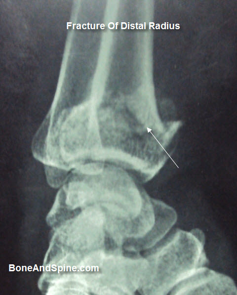 Fracture of Distal Radius