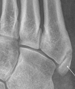 Accessory bone Os Vesalianumof the foot