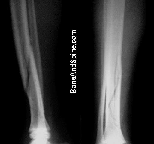 comminuted-undisplaced-fracture-tibia