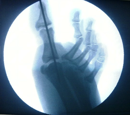 Intraoperative Image of Reduced and Fixed Metatarsophalngeal Dislocation