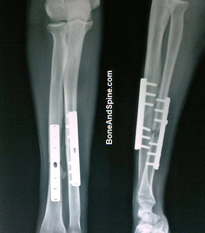 Operated Fracture Radius Ulna With DCP In Situ