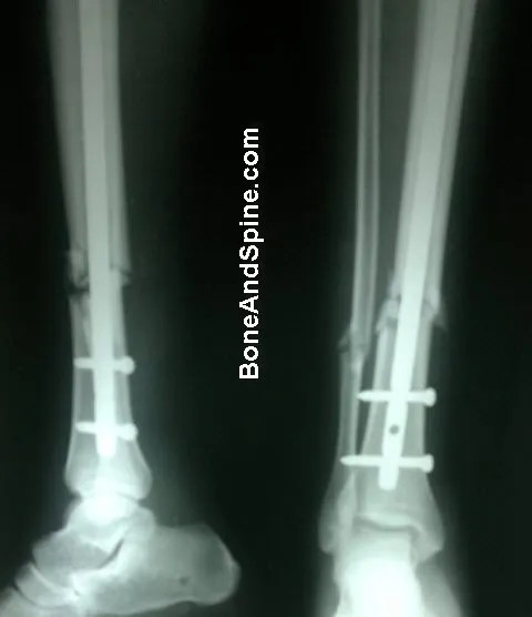 Fracture of TIbia and Fibula with Tibia Fixed With Interlock Nail