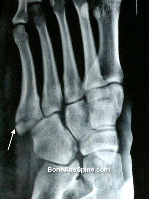 Jones Fracture