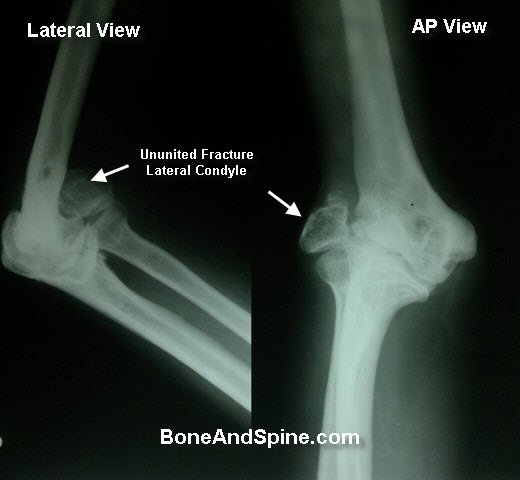 Fracture of Lateral Condyle Unnuited