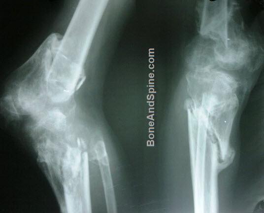 Floating Knee Injury