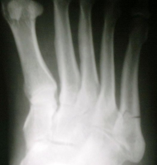 fracture shaft of fifth metatarsal