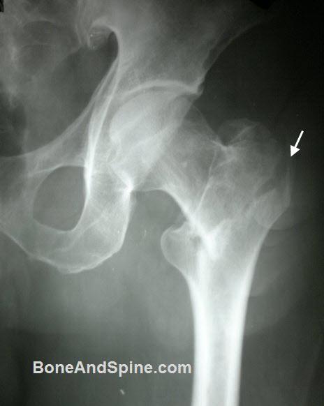 Xray of Intertrochanteric Fracture