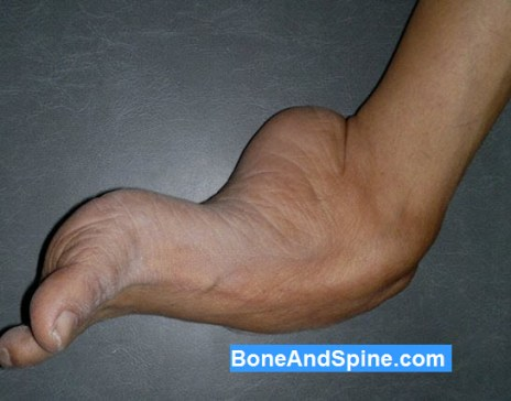 Clinical Photograph From Medial Side of Neglected CTEV in 65 Years Old Female