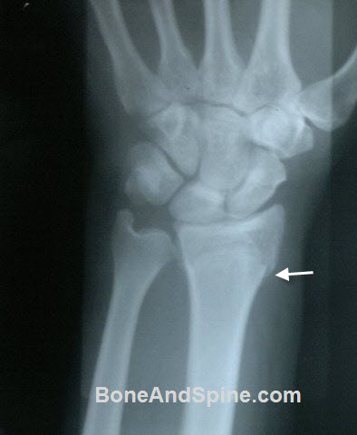 wrist injuries x-rays - Xray of Undisplaced Fracture of Distal End Radius