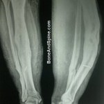 Osteomyelitis Presentation and Treatment