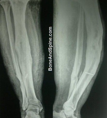 Osteomyelitis of Tibia With Bowed Tibia
