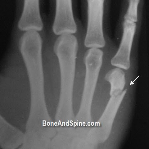 Fracture Fifth Metacarpal