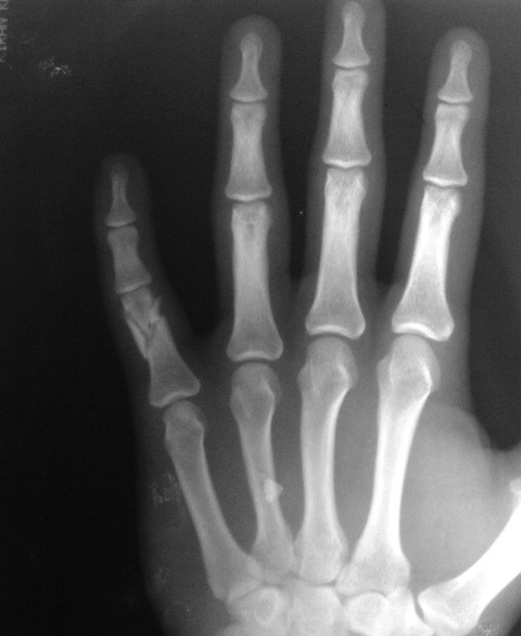 Comminuted Fracture Proximal Phalanx of Little Finger
