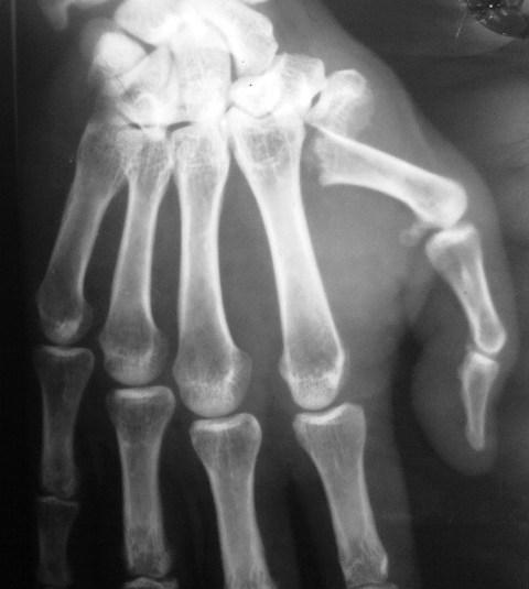 Fracture of Base of First Metacarpal Bone