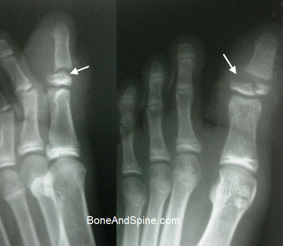 Open Fracture Great Toe Distal Phalanx