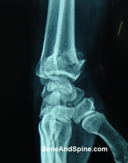 Distal radius fracture lateral view