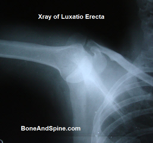 Xray of Luxatio Erecta