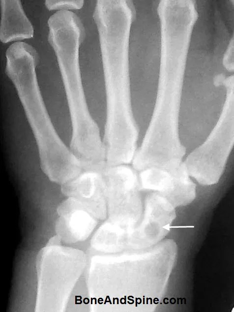 Lytic Lesion Scaphoid