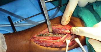 Plating and Different Modes of Plating in Orthopedics
