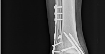 Ankle Fractures and Dislocations – Different Types of Injuries, Their Presentation and Treatment