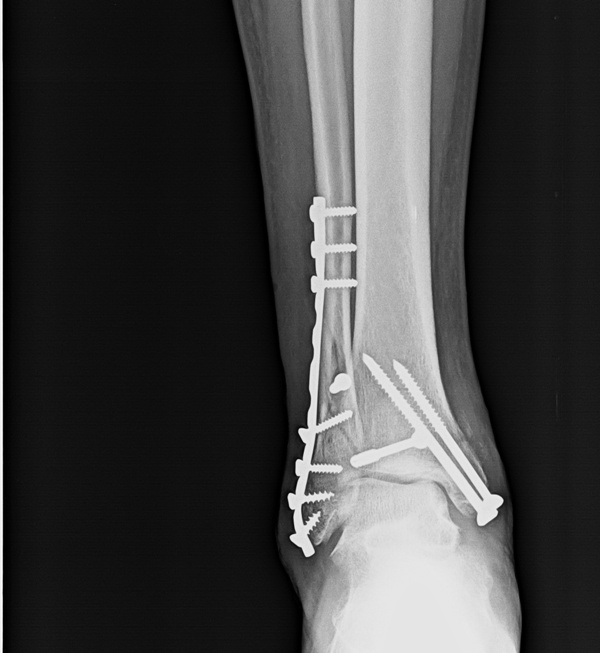 X Rays Of Ankle Fractures Bone And Spine
