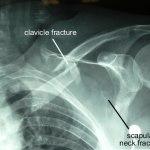 Floating Shoulder Injury