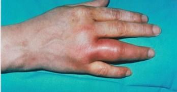 Gonococcal Arthritis