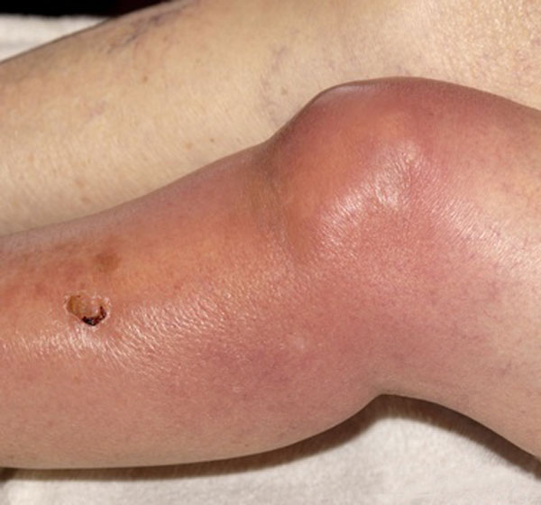 Septic Arthritis Knee where joint aspiration is done