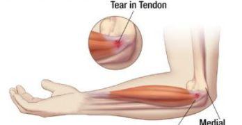 Medial Epicondylitis or Golfers Elbow