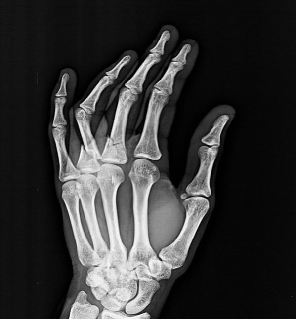 Hand Injuries -Xrays and Photographs | Bone and Spine