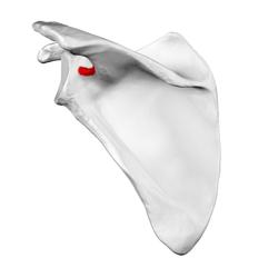 spinoglenoid notch
