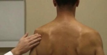 Suprascapular Neuropathy or Infraspiantus Syndrome