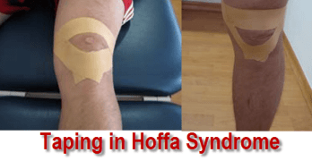 Hoffa Syndrome or Patellar Tendon Lateral Condyle Friction Syndrome