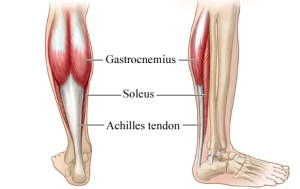 Achilles Tendinosis  Causes and Treatment | Bone and Spine