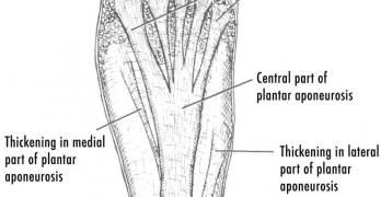 Plantar Fasciitis – Causes and Treatment