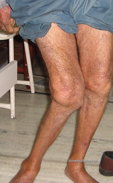 Man with genu valgum following knee injury