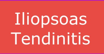 Iliopsoas Tendinitis Presentation and Treatment
