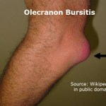 Olecranon Bursitis Presentation and Treatment
