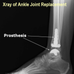 Joint Replacement Surgery – Present and Future
