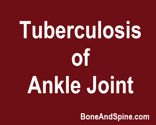 tuberculosis of ankle joint